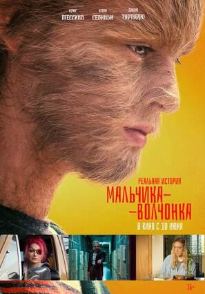 Постер фильма Реальная история мальчика-волчонка